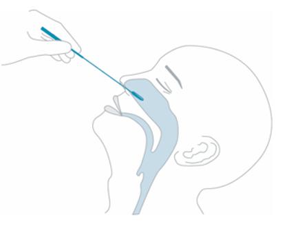 Schonender Nasenabstrich beim NADAL COVID-19 plus Antigentest
